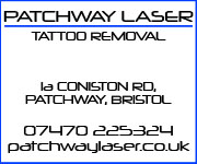 Patchway Laser Tattoo Removal.
