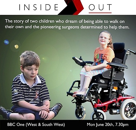 BBC Inside Out West documentary on SDR surgery